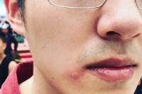 路子野?刘昊然拍《我和我的家乡》被蜜蜂蛰